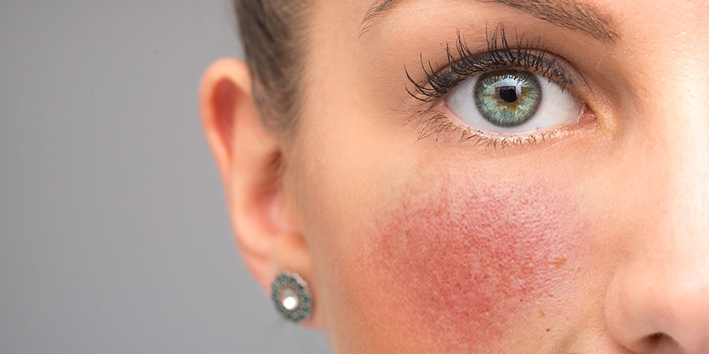 Woman with rosacea on her cheek.