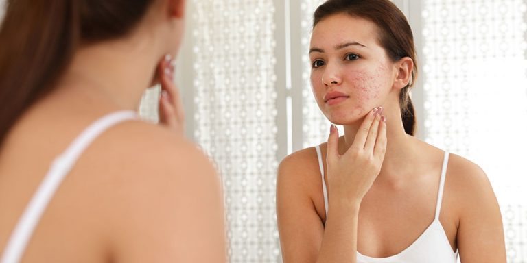 Woman looking at acne scars in the mirror